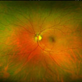 Optomap High Definition Retinal Photography